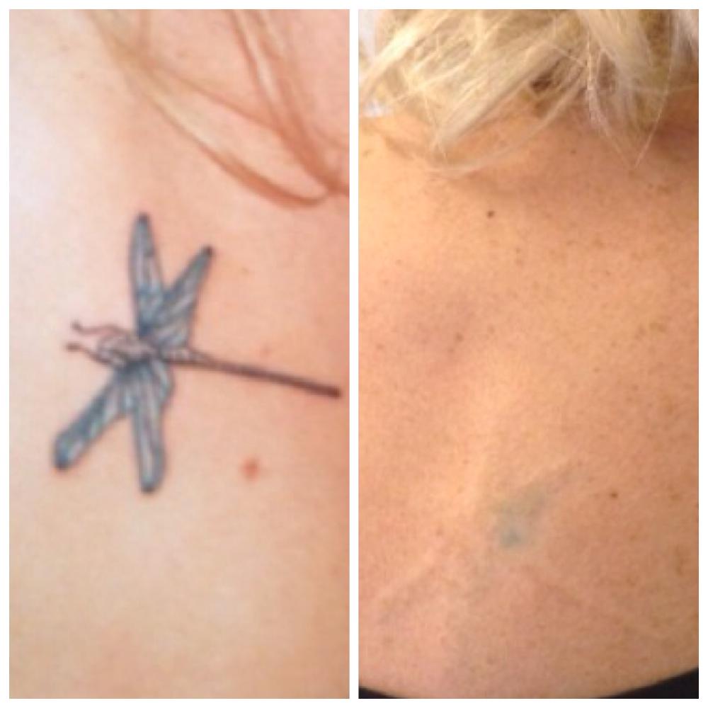 Tatoeages Verwijderen Coco Beauty Schoonheidssalon