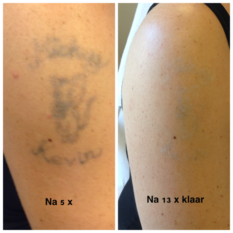 behandeling tattoo